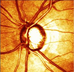 HRT Glaucoma Image